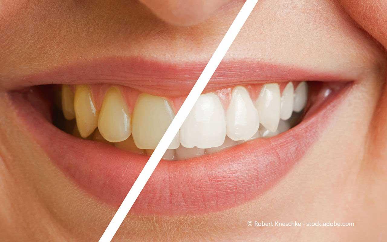 Wurzelbehandlung sich grau zahn verfärbt nach Toter Zahn